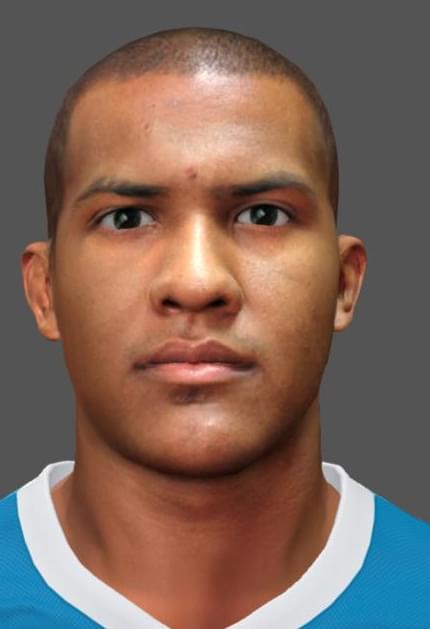 St petersburg facial implants